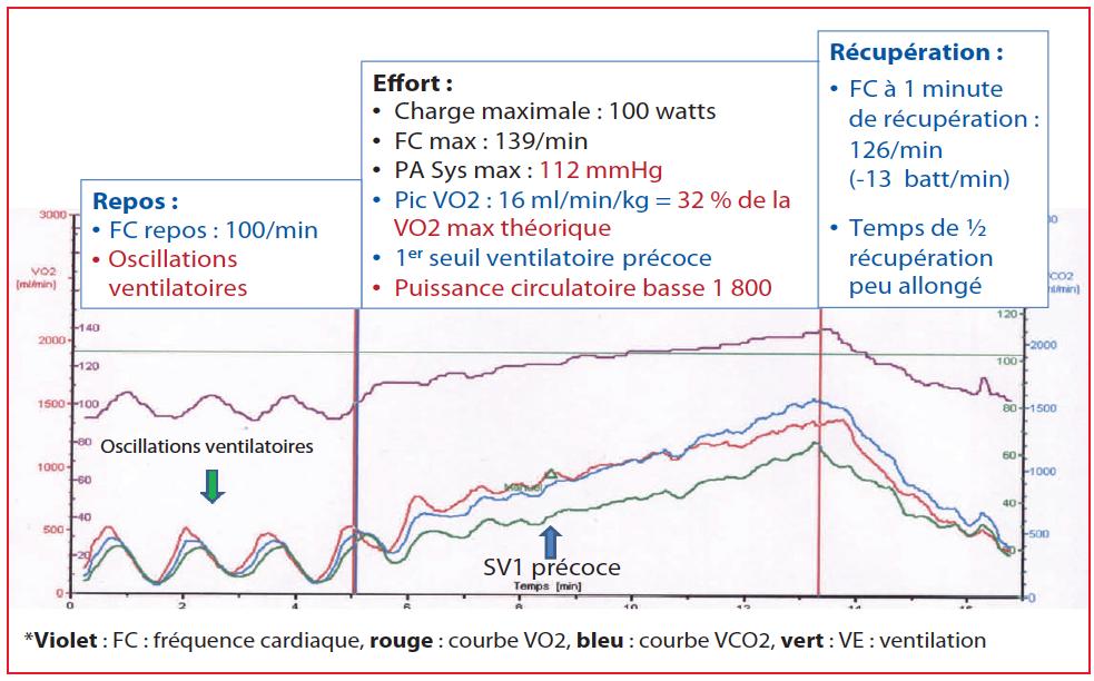Pourquoi un test d effort avec mesure de la vo2 chez l insuffisant cardiaque jean fran ois - Test vo2max sur tapis roulant ...