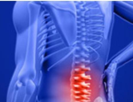 La lombalgie est une condition extrêmement courante qui va toucher au moins 80% de la population à un moment de sa vie.
