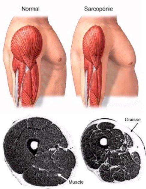 D:\Perso\Documents\DOSSIERS\UQTR\UQTR CHARGES DE COURS\- EPK 1201- ressources\01-musculosquelettique\2017\Sarcopenie.jpg