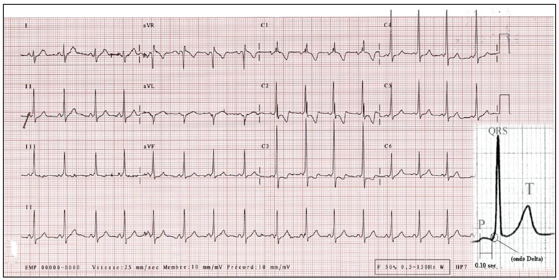 https://www.cardiologie-pratique.com/sites/www.cardiologie-pratique.com/files/images/article-journal/capture_decran_2018-06-07_a_10.10.39.png