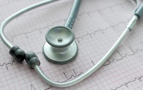 4 patients sur 10 atteints de fibrillation auriculaire, mais exempts d'antécédents d'accident vasculaire cérébral (AVC) ou d'accident ischémique transitoire (AIT) ont déjà des lésions cérébrales qu'ils ignorent