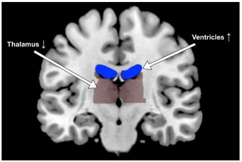 La déshydratation impacte la forme et l'activité du cerveau humain