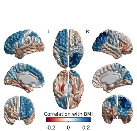 L'étude, par IRM associe l'épaisseur corticale à l'IMC (positivement : zones bleues et négativement : zones grises).