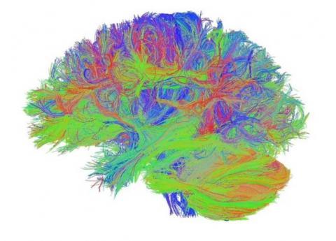 Le connectome illustre les connexions entre les différentes zones cérébrales.