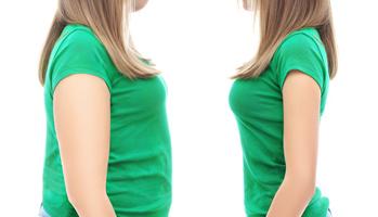 Les adolescents obèses présentent un risque accru de cancer du pancréas
