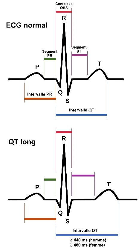 https://observatoireprevention.org/wp-content/uploads/2019/06/Syndrome_QT_long.jpg