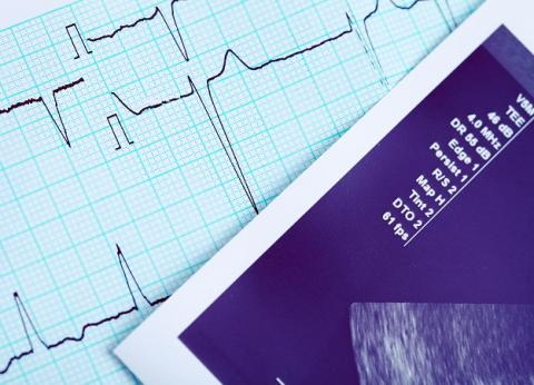 Suivre le régime DASH (Dietary Approaches to Stop Hypertension) connu pour ses bénéfices contre l'hypertension, peut également et considérablement réduire et prévenir le risque d'insuffisance cardiaque, chez les moins de 75 ans