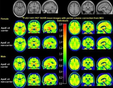 C'est la première étude à démontrer que le sexe module l'effet de l'ApoE ε4 sur le dépôt de tau cérébral