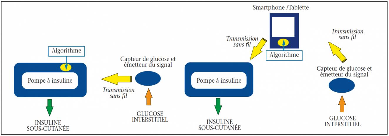https://www.diabetologie-pratique.com/sites/www.diabetologie-pratique.com/files/images/article-journal/capture_decran_2019-07-03_a_16.30.16.png