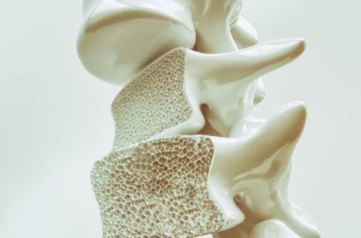 Représentation en 3D de lésions d'ostéoporose au niveau des vertèbres (illustration).
