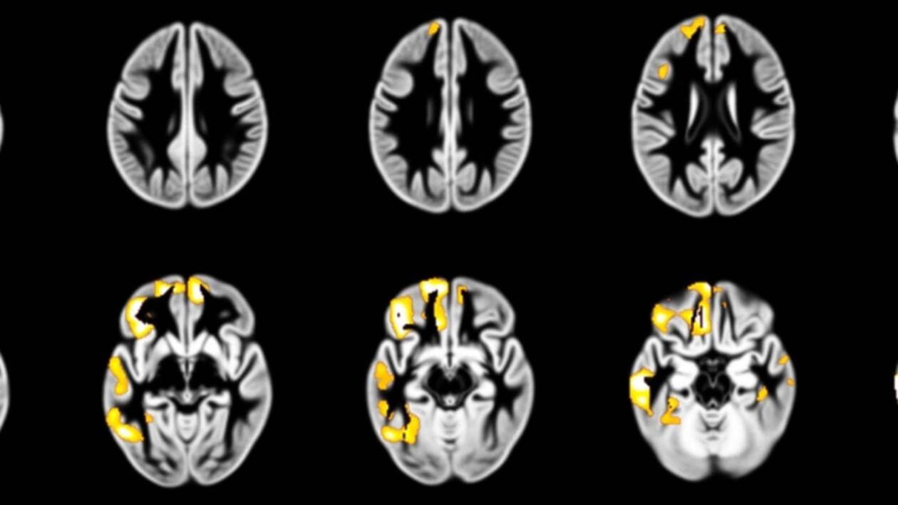 L'IRM d'un cerveau d'un adolescent où l'on voit, en jaune, des rétrécissements de certaines zones du cerveau.