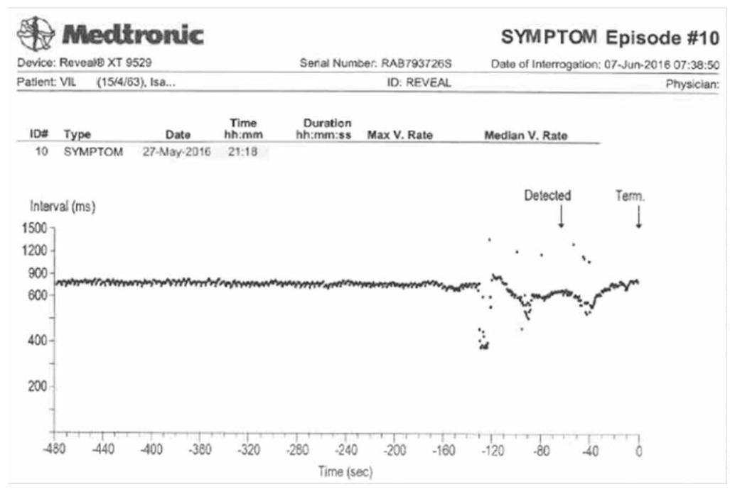 https://www.cardiologie-pratique.com/sites/www.cardiologie-pratique.com/files/images/article-journal/capture_decran_2019-11-28_a_10.03.35.png