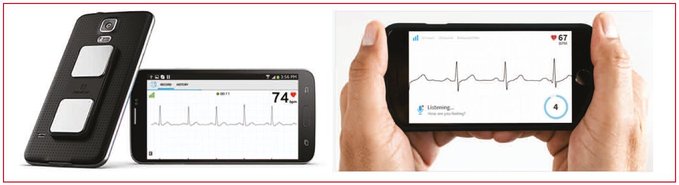 https://www.cardiologie-pratique.com/sites/www.cardiologie-pratique.com/files/images/article-journal/systeme_alivecor_kardia.png