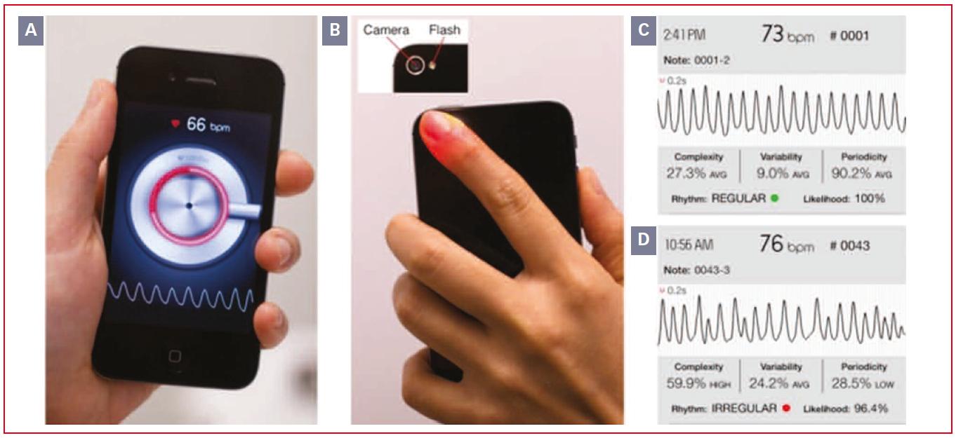 https://www.cardiologie-pratique.com/sites/www.cardiologie-pratique.com/files/images/article-journal/mesure_rythme_cardiaque_avec_smartphone.png