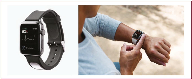 https://www.cardiologie-pratique.com/sites/www.cardiologie-pratique.com/files/images/article-journal/enregistrement_trace_ecg_avec_smartwatch.png