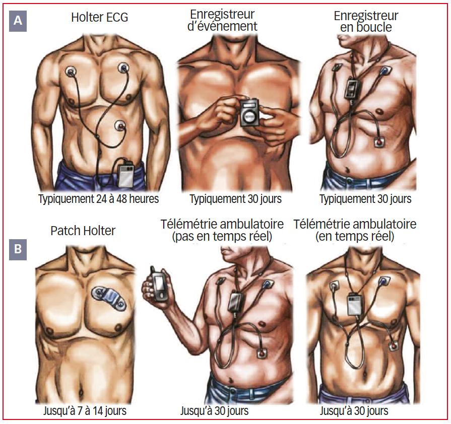 https://www.cardiologie-pratique.com/sites/www.cardiologie-pratique.com/files/images/article-journal/moniteurs_ecg.png