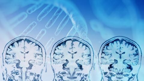 Les patients à score génétique élevé d'accident vasculaire cérébral ischémique peuvent et doivent réduire ce risque en minimisant leur exposition aux facteurs bien connus comme l'hypertension, le surpoids et le tabagisme.