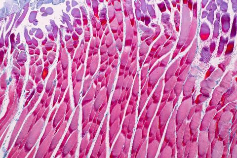 Titine est la plus grande protéine du corps et la plus abondante dans le muscle strié.