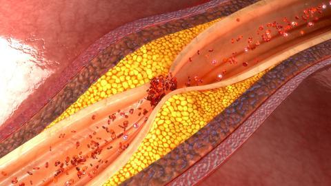 Un simple remodelage du microbiome intestinal peut entraîner des effets artériels considérables (Visuel Adobe Stock_113512803)