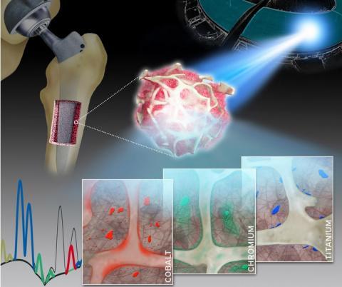 Cette observation détaillée de la libération des différents métaux par les implants articulaires et de leur accumulation dans le tissu osseux environnant va contribuer à améliorer encore les prothèses, pour limiter ce risque (Visuel Naujok/Charité)