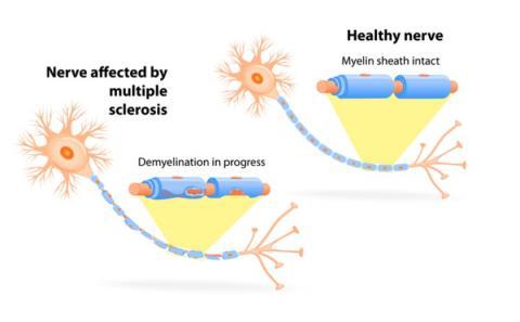 Epuiser la protéine reeline pourrait protéger contre plusieurs conditions caractérisées par une inflammation chronique (visuel CDC)