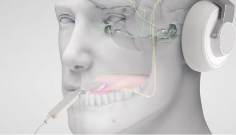 Ce dispositif de neuromodulation bimodale comprend des écouteurs et un petit réseau d'électrodes qui stimule la langue (Visuel Neuromod Devices Limited)