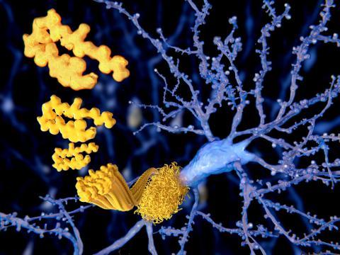 La découverte de ce segment de protéine bêta-amyloïde clé, reconnu par la protéine prion cellulaire qui va ensuite médier son absorption neuronale et « permettre » sa toxicité ultérieure est cruciale (Visuel Adobe Stock 103208979)