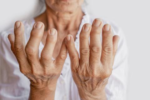 Ce nouveau médicament non seulement supprime l'inflammation, mais réduit également considérablement les scores de douleur rapportés par les patients (Visuel Adobe Stock 304058462)