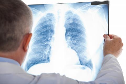 Les personnes atteintes de prédiabète ou de diabète qui vivent dans des zones polluées par l'ozone peuvent présenter un risque accru de maladie irréversible avec un taux de mortalité élevé (Visuel Adobe Stock 54940412)