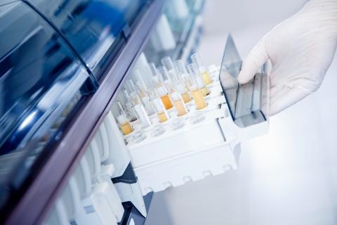 Avec l'utilisation de techniques d'intelligence artificielle (IA), il sera bientôt possible de détecter, en routine, les cancers par simple test d'urine (Visuel Adobe Stock 334065984)