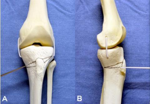 De nouvelles données engagent à opter plus souvent pour l'ostéotomie tibiale haute, ce qui peut permettre de retarder ou d'éliminer la nécessité d'une arthroplastie totale du genou (Visuel NIH)