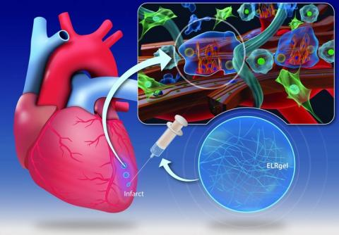 Cette injection d'hydrogel pourrait changer la façon dont le muscle cardiaque guérit après une crise cardiaque (Visuel CÚRAM, National University of Ireland Galway)