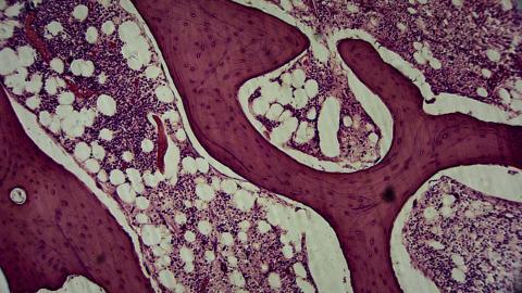 Les graisses suractivent une protéine destructrice qui stresse les cellules cardiaques jusqu'à l'hypertrophie, et jusqu'à la crise cardiaque (Visuel Adobe Stock 112344435)