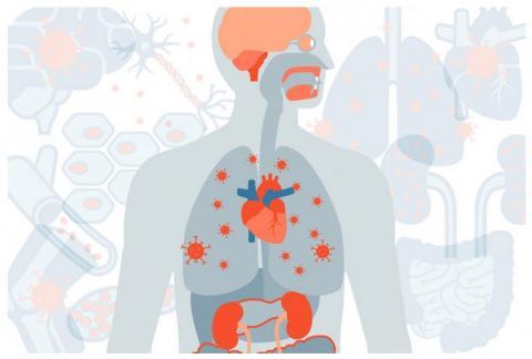 Parmi les survivants du COVID-19, des symptômes sévères persistants et un risque accru de décès (Visuel Sara Moser)