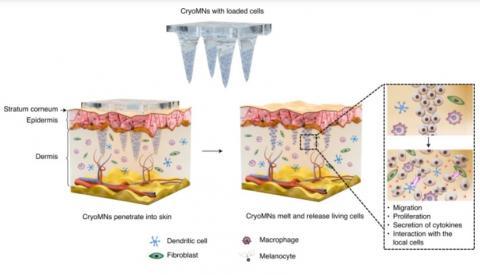Les «cryomicroneedles» sont des micro-aiguilles « glacées », longues de moins d'1mm, montées ici sous forme de patch cutané capable de charger, stocker et délivrer par voie intradermique des cellules vivantes (Visuel Chang et al. /DOI number: 10.1038/s41551-021-00720-1)