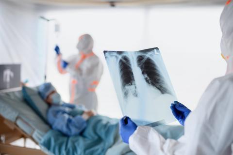 Un tiers des patients hospitalisés pour une forme grave de COVID-19 présentent toujours des anomalies pulmonaires un an plus tard (Visuel Adobe Stock 331045992)