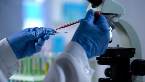 C'est un grand pas dans le diagnostic précoce de la démence : un simple test sanguin capable de révéler avec précision une neurodégénérescence sous-jacente (Visuel Fotolia)