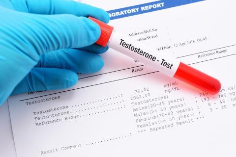 En synthèse, la testostérone permet de réduire la stéatose hépatique et de faire d'une pierre deux coups chez ce groupe de patients atteints à la fois d'hypogonadisme et de troubles métaboliques (Visuel Adobe Stock 121379406)
