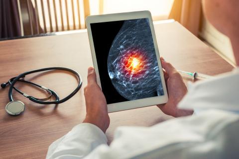 L'alimentation peut modifier non seulement le microbiome mammaire, mais exercer également une influence sur le risque de cancer et les tumeurs cancéreuses du sein (Visuel Adobe stock 221990325)
