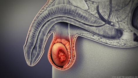 A computer rendering of testicular cancer.