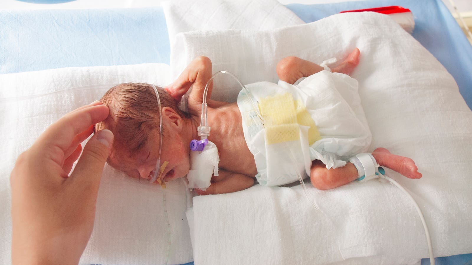 A woman caresses the head of a preterm infant in the neonatal ICU.