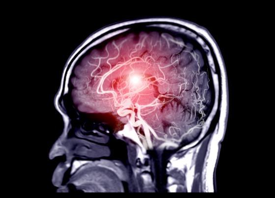 vue du sang dans le cerveau