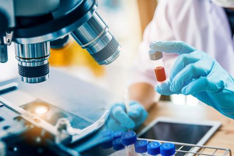 Ce test sanguin révèle quand les tumeurs bénignes deviennent cancéreuses, chez les personnes atteintes d'une maladie héréditaire, la neurofibromatose de type 1 ou NF1 (Visuel Adobe Stock 293953008)
