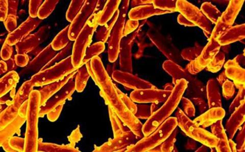 Mycobacterium tuberculosis est l'une des principales causes de décès dans le monde, entraînant plus de 1,5 million de décès par an (Visuel National Institute of Allergy and Infectious Diseases).