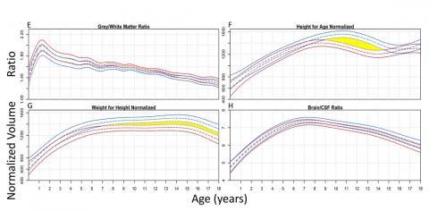 Premières courbes de croissance du cerveau-Source JNS